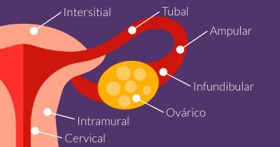 Embarazo Ectópico Fertilidad In Vitro