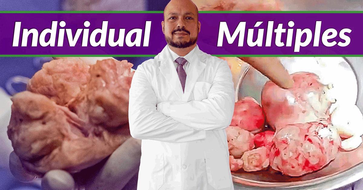 Mioma individual vs miomas multiples
