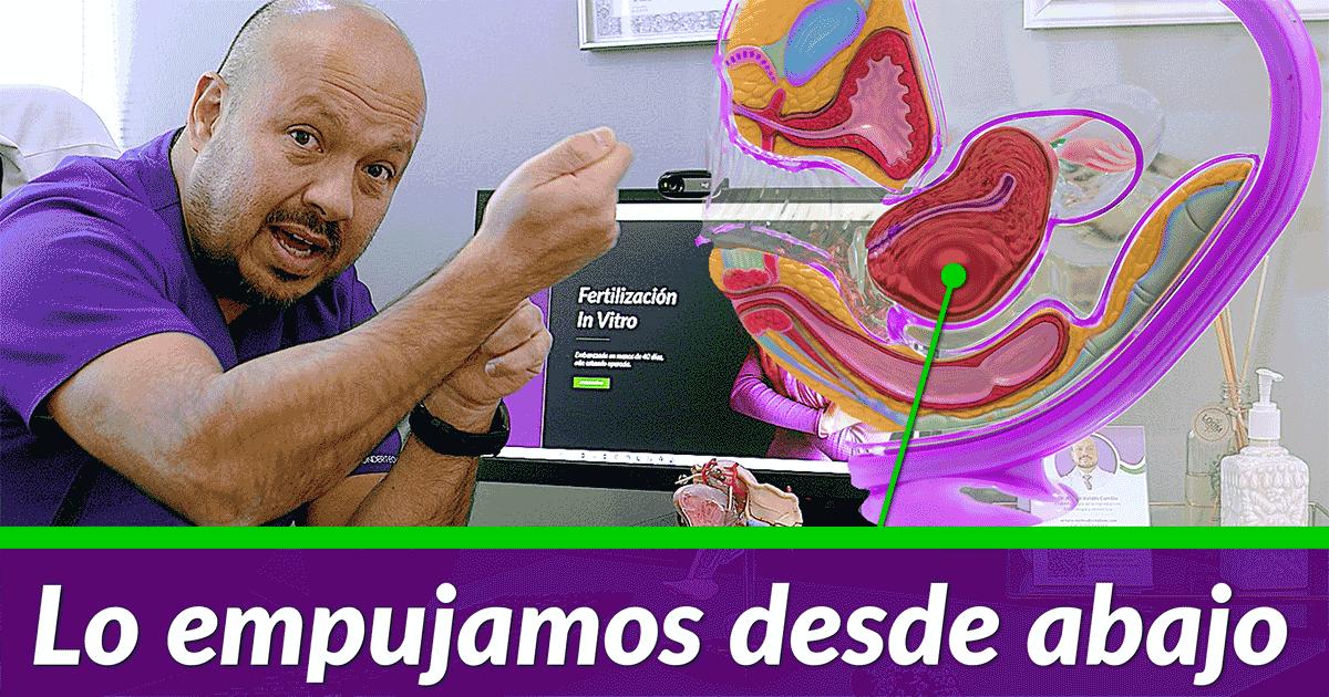 Mioma cervical