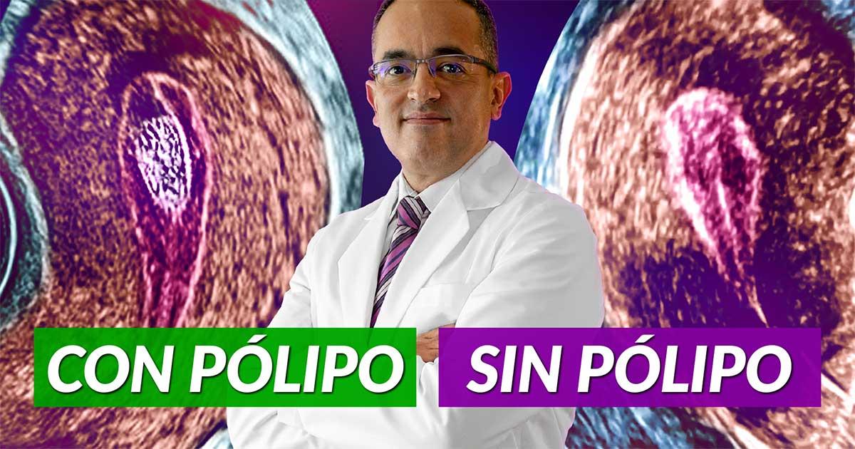 Pólipos tratamiento cirugía laparoscopia
