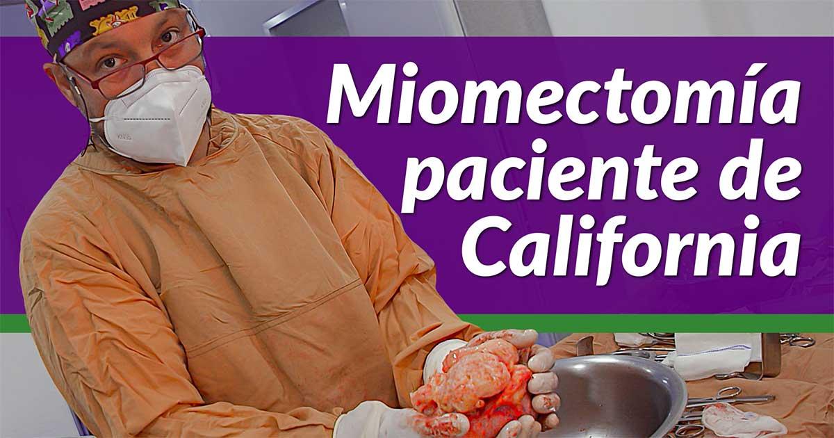 Cirugía Mioma California Útero Matriz